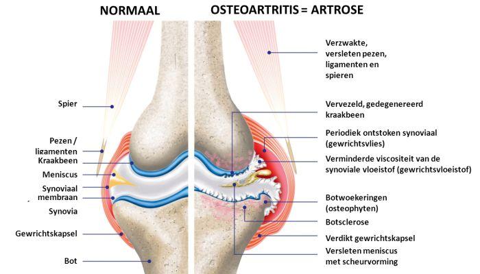 Artrose en pijn